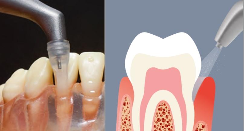 Higienizacja poddziąsłowa kieszeni periodontologicznych