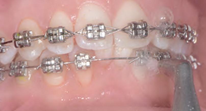 Leczenie pacjenta ortodontycznego