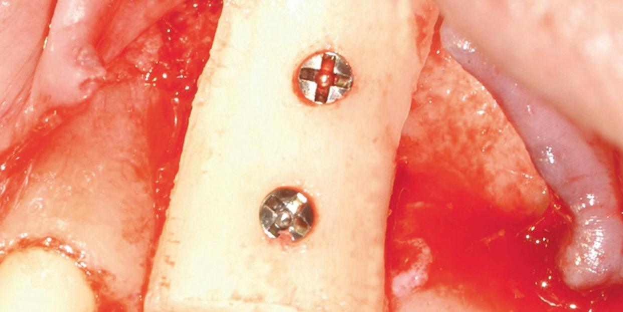 Szerokie możliwości zabiegowe urządzenia Mectron Piezosurgery
