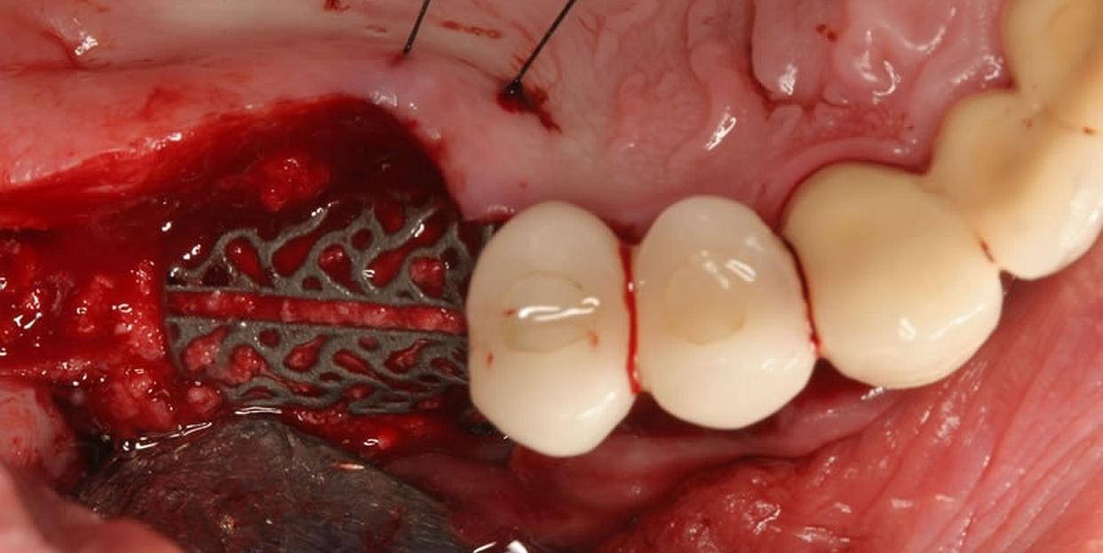 LBW_chirurgia_header_02